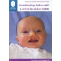 Breastfeeding: Babies with Cleft Lip and/or Cleft Palate