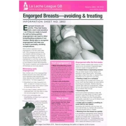 Engorged Breasts – Avoiding and Treating